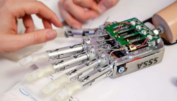 итальянские врачи придумали искусственную руку