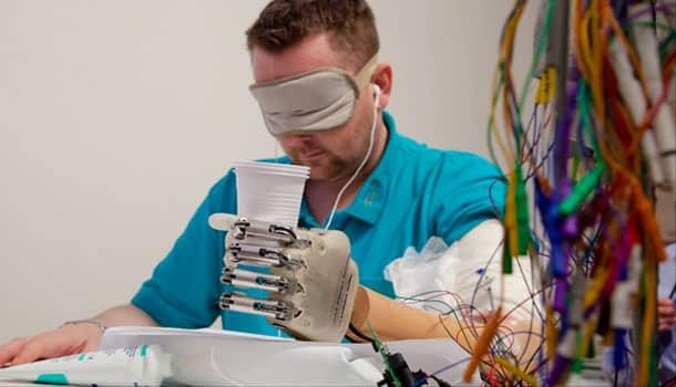 биоэлектронная рука