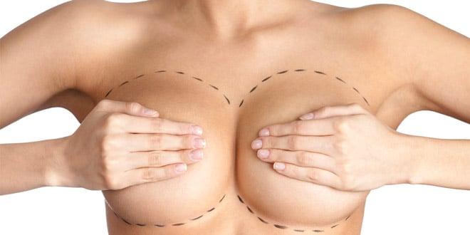 Стоимость грудных имплантов в минске