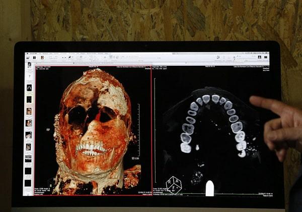 Исследования при помощи томографа в Помпеях